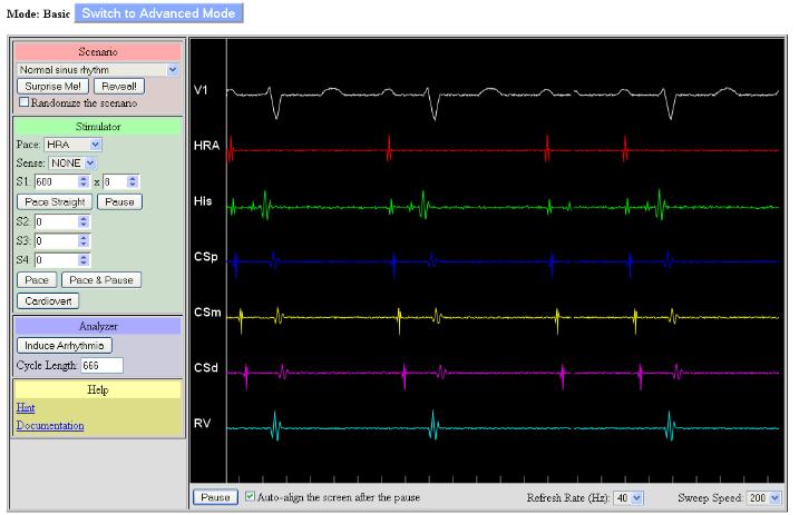 Supraventricular Tachycardia Simulator (svtsim)